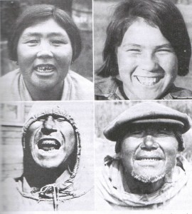 Native Alaskan Eskimos not exposed to modern diet. The woman on the top left has a broken tooth and has born 26 children. Note the broad faces, straight teeth, and lack of decay.