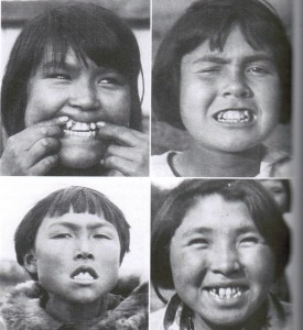 Native Alaskan Eskimos born to parents eating a modern diet. Note the crowding and malocclusion.