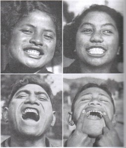 New Zealand Maori prior to the introduction of modern food. Very low incidence of tooth caries with a preponderance of wide dental arches and good occlusion.
